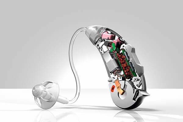 補聴器とは